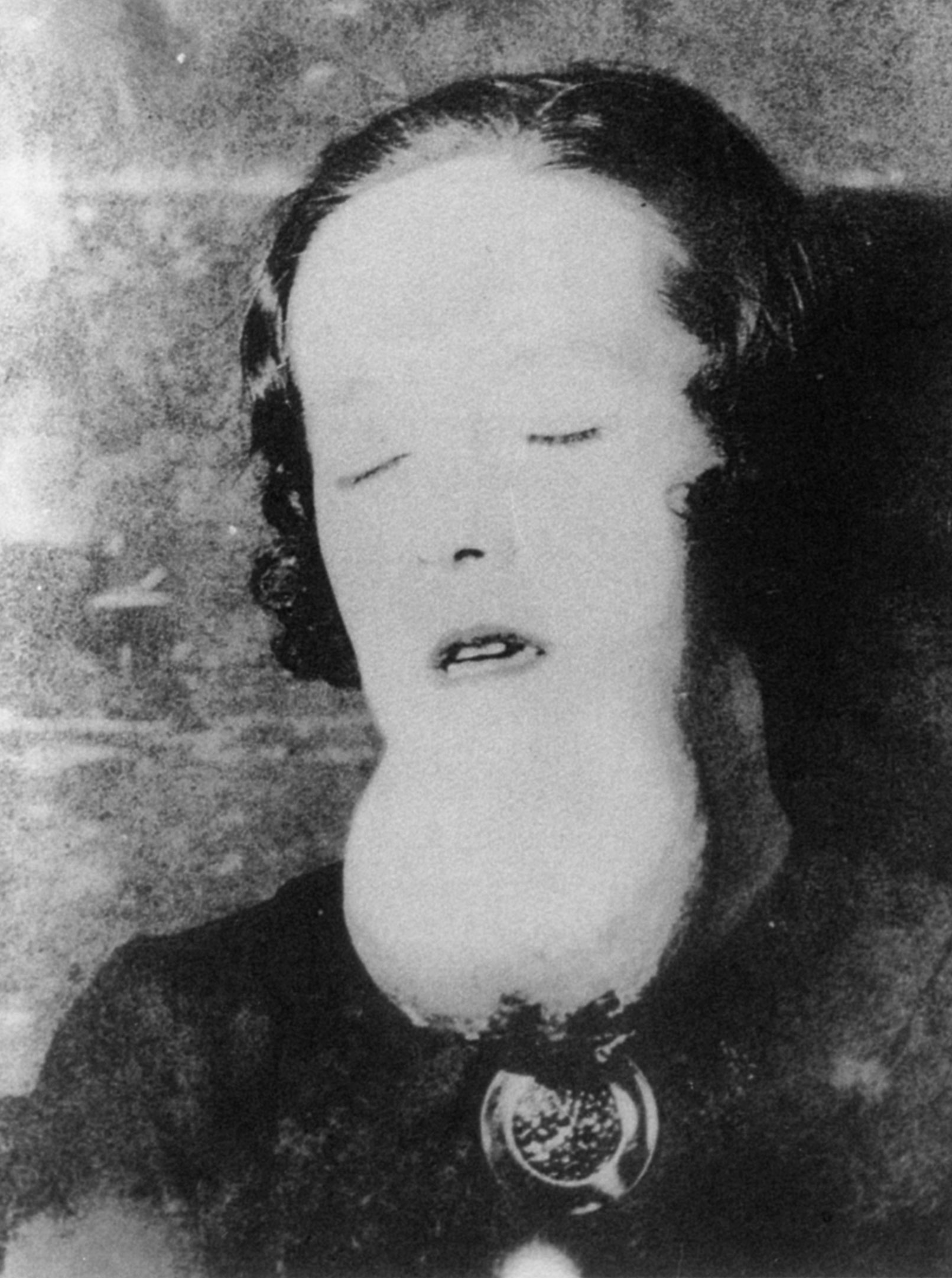 A dial-painter with a radium-induced sarcoma of the chin